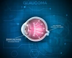 Public Lecture On Glaucoma On March 14 | GIS