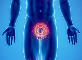 Znalezione obrazy dla zapytania rak prostaty