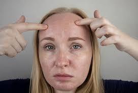 get rid of keratosis pilaris on my face