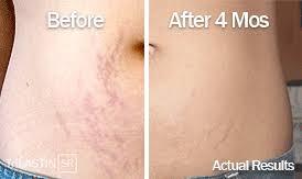 October 2015 Beauty Skin Whitening Health Sexual Wellness