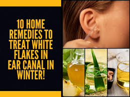 10 Home Remedies To Treat White Flakes In Ear Canal In Winter ...