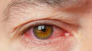 what s causing your eyelid twitch