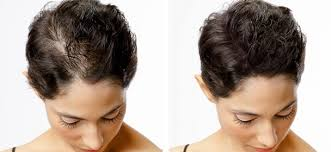 Konec Lysin A Pleše Zahuštění Vlasů Pomocí Tetováže Top Metoda