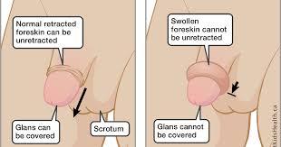 Foreskin problems in boys