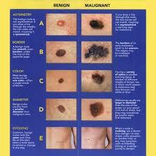 Its Mole Check Time Mole Sun Care Health Beauty