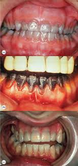 Tooth Color An Overview Sciencedirect Topics