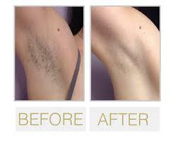 best san francisco laser hair removal
