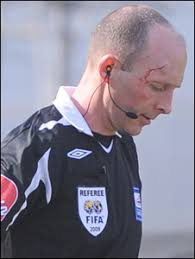 Referee Mike Dean was hit on the forehead by what is believed to be a coin - _45636072_ref.300