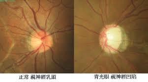 「青光眼」的圖片搜尋結果