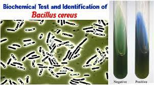 Biochemical Test And Identification Of Bacillus Cereus