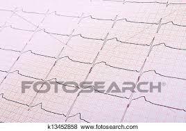 Heart Rhythm Chart Stock Photo K13452858 Fotosearch