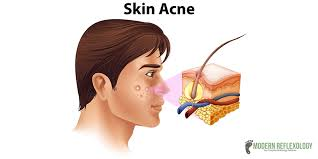 Facial Rejuvenation Acupuncture Points Chart 8 Best Acupressure Points To Get Rid Of Acne And Pimples At Home