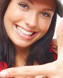 Image result for teen invisalign