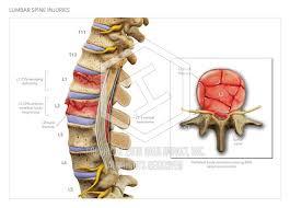 L1 And L2 L1 L2 Lumbar Spine Injuries High Impact Visual Litigation Strategies