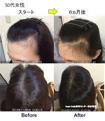 閉経後の女性の薄毛の改善例仙台市50代女性女子男性型脱毛症faga