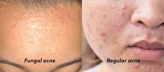 how to identify fungal acne