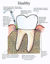 Dental And Periodontal Charting Periodontal Charting Wikipedia