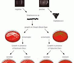 Streptococcus Identification Chart Bacitracin Test Principle Procedure Expected Results
