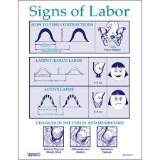 Pregnancy Labor Contractions Chart Signs Of Labor Educational Tear Pad Childbirth Graphics
