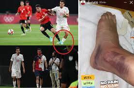 صورة صادمة لكاحل لاعب إسبانيا بعد إصابته أمام منتخب مصر - رياضة - عربية  ودولية - الإمارات اليوم