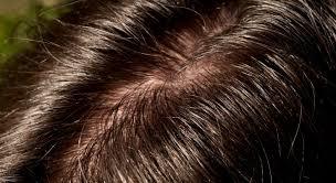 oily hair or an oily scalp