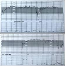 transplacental transmission of sars cov