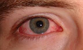 Doctors Note For Pink Eye How Long Does Pink Eye Last 7 Signs You Are Still Contagious