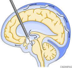 「脳圧・頭蓋内圧測定」の画像検索結果