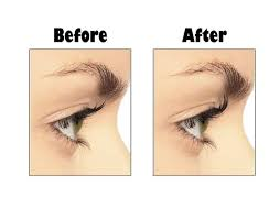 eyelash curler before and after. before and after using fortebellezza\u0027s pink eyelash curler. you can curl like a pro also, click here to find out more about the curler purch\u2026