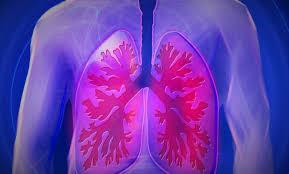 الالتهاب الرئوي المزدوج وطرق علاجه – e3arabi