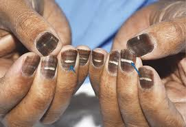 nail to turn brown and striped