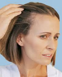 Male Pattern Baldness In Women Best выпадение волос у женщин Httpgiomatruinfohairlossinwomen