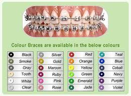 Braces Color Chart Teeth Braces Dental Braces Braces Tips