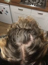 hair loss worse on ndt week 7 on ndt