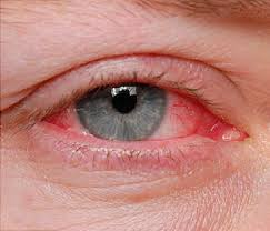 Conjunctivitis (Pinkeye): Symptoms, Causes, Treatment, Prevention