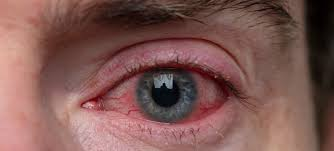 tell tale symptoms of eye infections