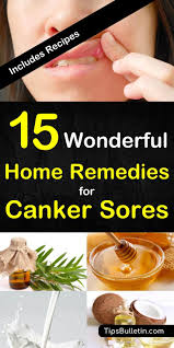 15 canker sore relief remes that work