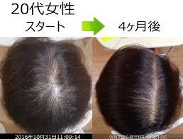 頭頂部が薄くagaなってきて好きな髪型ができない 発毛実績aさん 男性