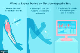 My Emg Chart Electromyography Uses Side Effects Procedure Results