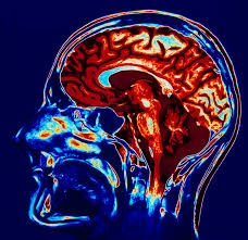 Image result for dopamina