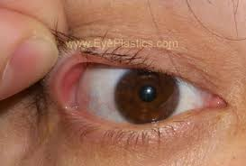 The top or cover of a container.· (slang) a cap or hat. Floppy Eyelid Syndrome Eye Lid Laxity Ectropion Entropio Floppy Eyelid Laxity Trichiasis
