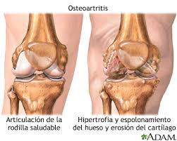 Que significa osteoartritis