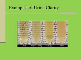 Urine Color And Clarity Chart Assistant Professor Of Biochemistry Ppt Video Online Download