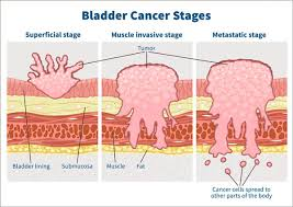 Sometimes bladder stones — even large ones — cause no problems. Bladder Cancer Survival The Importance Of Early Detection Cxbladder