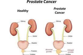 Картинки по запросу PIN: Not Prostate Cancer