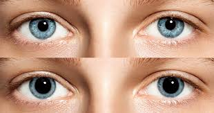 Iris Size Chart Dilated Pupils Causes And Concerns