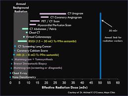 Molecular Breast Imaging Breast Specific Gamma Imaging
