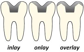 dental onlay inlays and onlays wikipedia