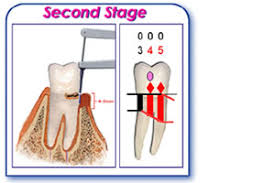 Diagnosis And Images Of Gum Disease