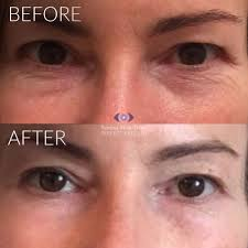 tixel rejuvenation treatment before and after pictures disclaimer your results may vary any specific claims or permanence length of results vary